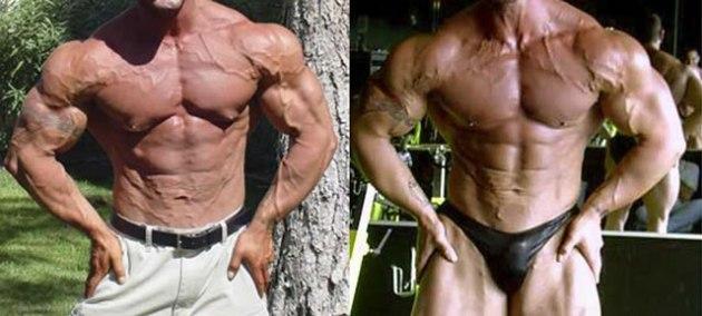 Gynecomastia in bodybuilding